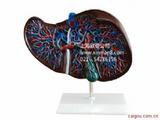 肝模型,肝解剖模型