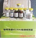 血、尿b2-微球蛋白(b2-MG)ELISA试剂盒