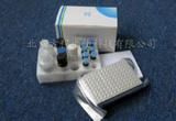兔肌酸激酶(CK-MB)ELISA试剂盒|检测价格 进口