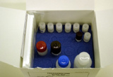 大鼠抗心肌抗体(AMA)ELISA试剂盒