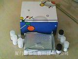 人c-myc癌基因产物(c-myc)ELISA试剂盒