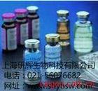人血清总补体(CH50)ELISA 试剂盒