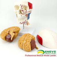 ENOVO颐诺医学人体头颅脑肌肉大脑模型颅脑神经科解剖头骨模型1:1