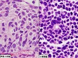 NB4细胞,急性早幼粒细胞,白血病细胞