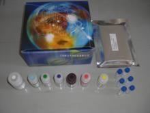 人抗副流感病毒IgM抗体(anti-PIVIgM)ELISA试剂盒
