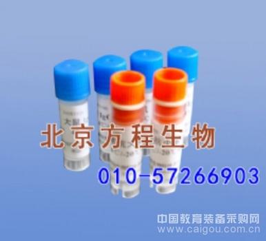 人Human抗白蛋白抗体(AAA)ELISA Kit检测价格说明书
