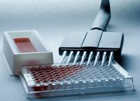 17-OHP试剂盒,人17羟孕酮ELISA试剂盒价格
