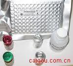 可溶性白介素-2受体(sIL-2R )ELISA kit