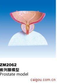 前列腺模型