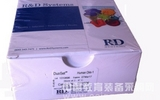 透明质酸ELISA试剂盒,大鼠透明质酸ELISA试剂盒