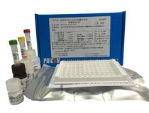 強直性脊柱炎B27檢測試劑盒(磁酶聯免疫法)