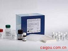 大鼠IFI16/p16,γ干扰素诱导蛋白16/p16Elisa试剂盒