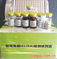 人肺炎支原体IgG抗体(MP-IgG)ELISA试剂盒