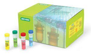 弓形虫(TOX)核酸检测试剂盒(PCR-荧光探针法)