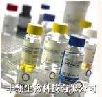 人抗卵巢抗体(AOAb IgG)ELISA试剂盒