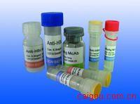 PTX3/ 重组人Pentraxin - 3 Recombinant Human Pentraxin-3