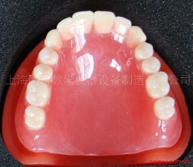 口腔修复模型